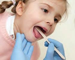 Tonsillectomy Tracheotomy