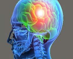 Neurosurgery Laminectomy